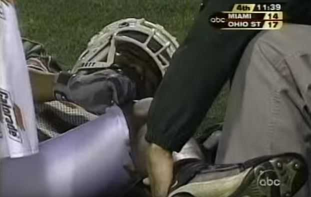 Wilis McGahee injury, gruesome sports injuries